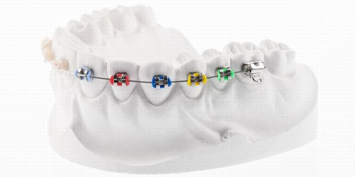 יישור שיניים לילדים – למבוגרים