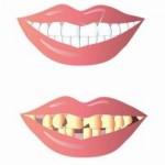 חבלה בשיניים קדמיות