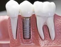 השתלת שיניים לחולי סוכרת