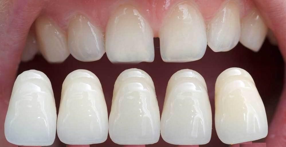 ציפוי חרסינה לשיניים – ציפוי שיניים למינייט, לומיניר, קומפוזיט
