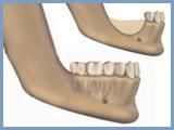 טיפול שיניים בבאר שבע