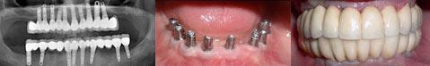 השתלת שיניים לבן 40