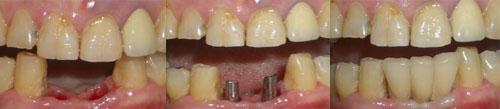 השתלת שיניים מיידית