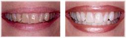 הלבנת שיניים ואסתטיקה