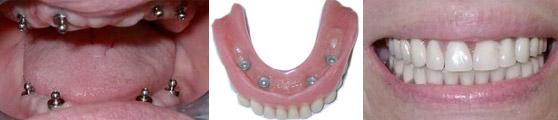השתלת שיניים בן 82