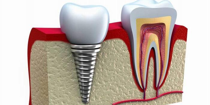 רופא שיניים משתיל בבאר שבע  –  מה לא ייספרו לכם?