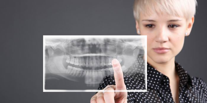 צילום שיניים דיגיטלי