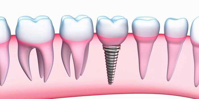 סיכונים בהשתלות שיניים