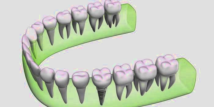 קיבוע אחרי יישור שיניים