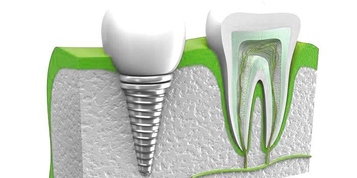 השתלות שיניים – מידע כללי על השתלות שיניים