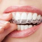 יישור שיניים עם קשתיות שקופות