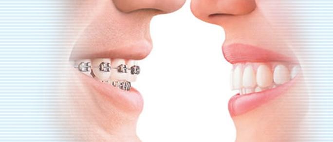 יישור שיניים בלתי נראה IROK