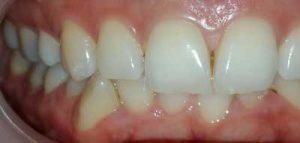 יישור שיניים בקשתיות שקופות בבאר שבע
