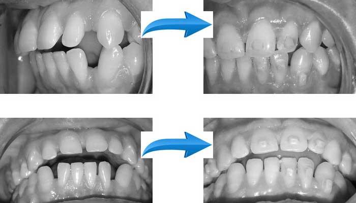 יישור שיניים שקוף בלתי נראה