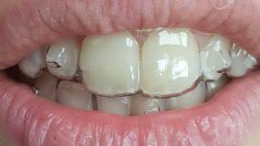 עדויות – המלצות יישור שיניים שקוף בבאר שבע